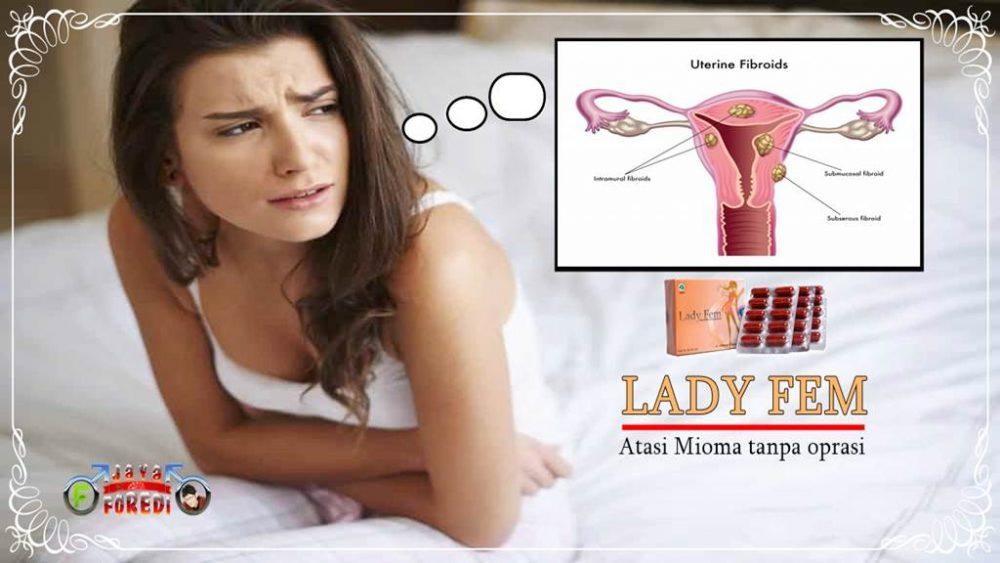 Manfaat Ladyfem untuk atasi Mioma tanpa oprasi